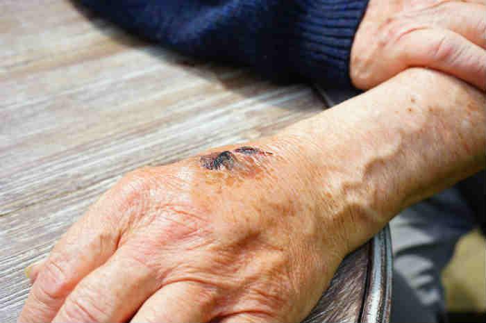 lesione cutanea mano