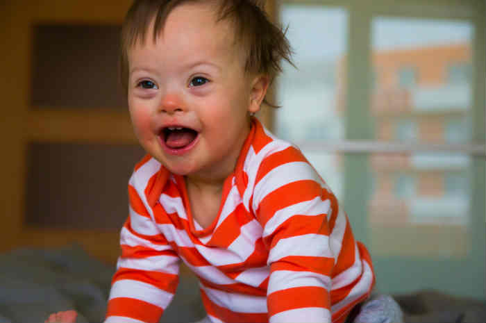 bambino affetto da sindrome di down