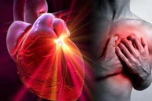 Assistenza Infermieristica in Cardiochirurgia