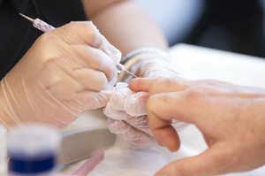 Taglio delle unghie delle mani del paziente
