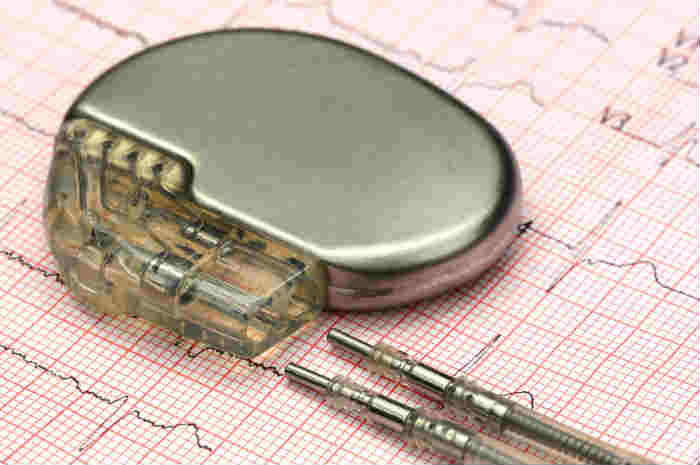 Pacemaker, lo stimolatore cardiaco
