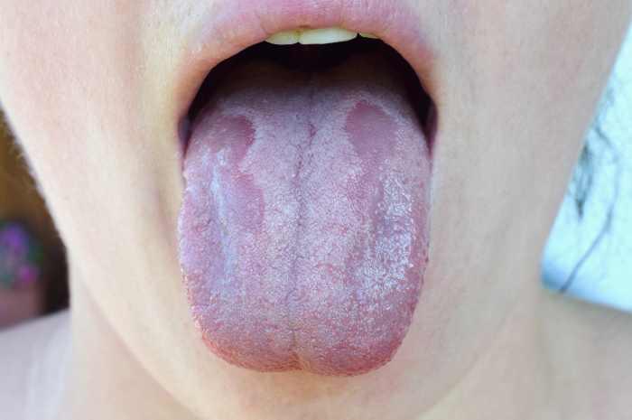 Mughetto o candidosi orale