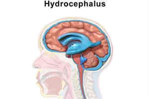 Idrocefalo: sintomi, cause e trattamento