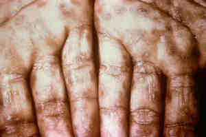 Sifilide o Lue: cause, sintomi ed epidemiologia