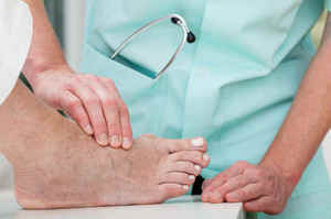 Alluce valgo: Sintomi, chirurgia e assistenza infermieristica