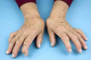 Artrite reumatoide, patologia invalidante