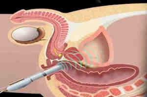 Biopsia prostatica: tipologie e procedura d'esecuzione