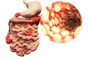 Morbo di Crohn, patologia cronica autoimmune dell'intestino