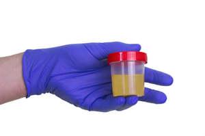 Urine torbide e con pus, la piuria