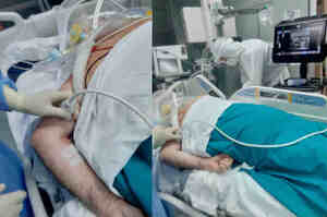Posizionamento accesso venoso ecoguidato nel paziente prono