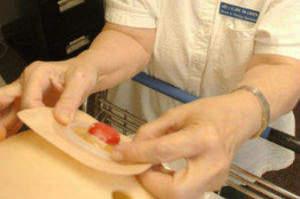 Piemonte, prestazioni infermieristiche inserite nel nomenclatore