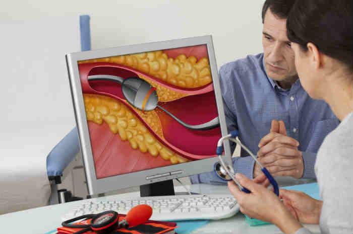 dimostrazione di aterectomia rotazionale