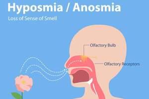 Alterazioni dell'olfatto, disosmie e relazione con Covid-19