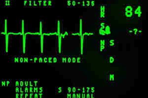 Profilo di Posto dell'infermiere in Cardiologia e UTIC